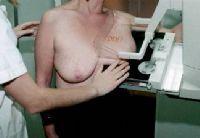 El SES realizará mamografías a casi 2.000 mujeres de la provincia de Cáceres durante el mes de febrero
