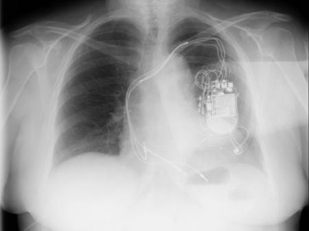 Cardiólogos extremeños utilizan por primera vez en España una técnica para resincronización cardíaca