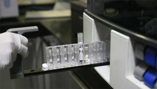 Extremadura está por debajo de la media nacional en número de PCR hechas desde la pandemia