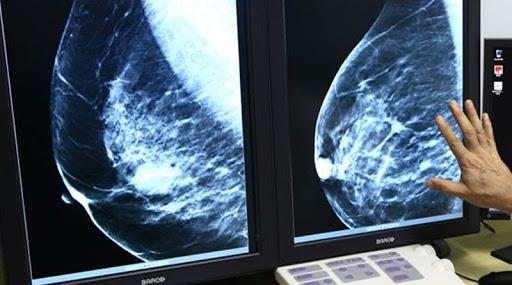 Más de 8.500 extremeñas se realizarán mamografías para prevenir el cáncer de mama